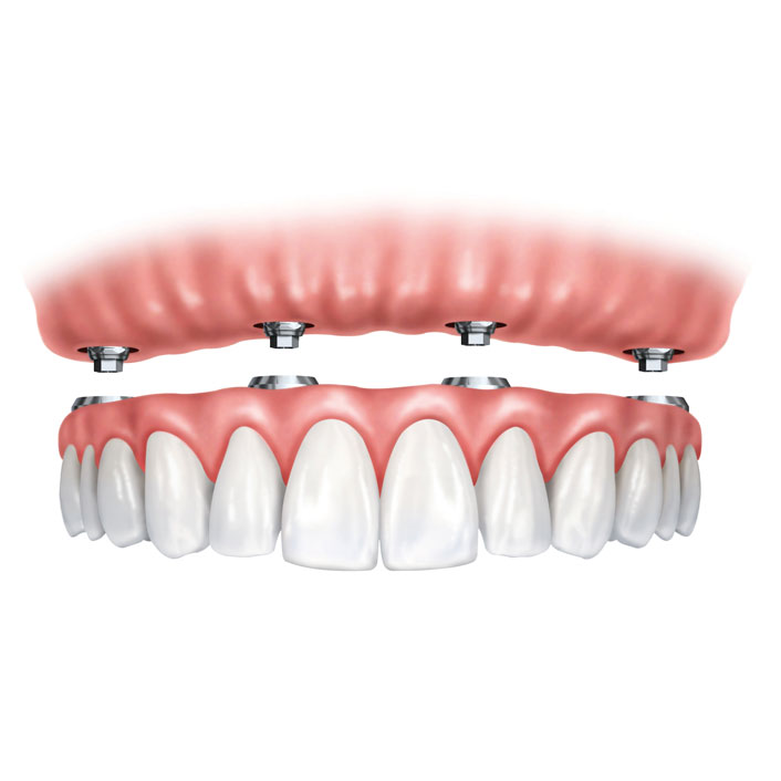Implant Supported Dentures - Dental Services